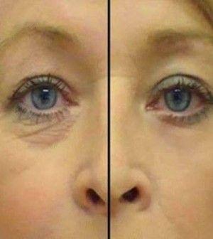 2 hozzávaló a szem alatti ráncok ellen