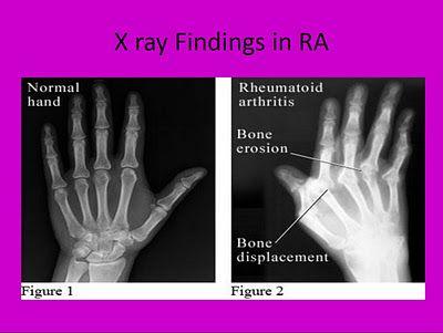 rare medical diseasse book free pdf