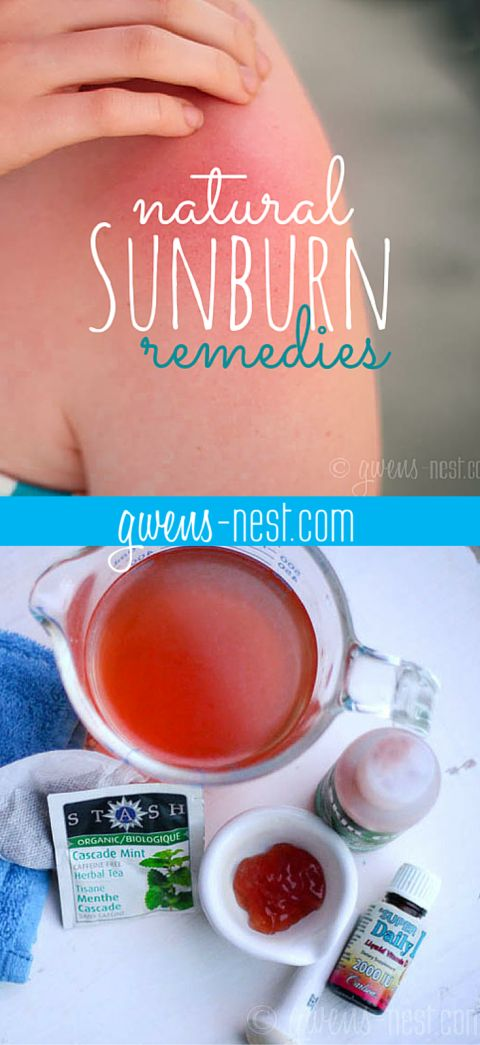 Natural sunburn relief -you may already have these natural sunburn remedies on hand!
