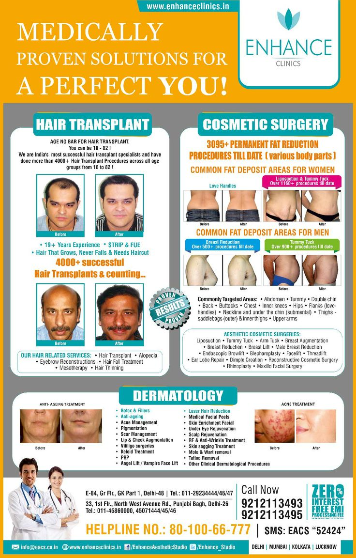 HT City Ad  Hair Regrowth Results Visit http://www.enhanceclinics.in/hairlossmain for more.