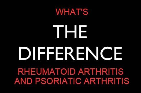 What is psoriatic arthritis and how is it different from rheumatoid arthritis? Psoriatic arthritis is a lot like RA but with a nasty skin rash. Learn more.