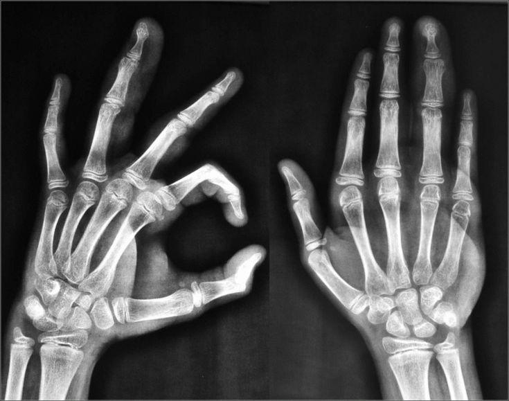 Le Gocce di Sapienza: Scrocchiare le dita o del collo farà male alle art...