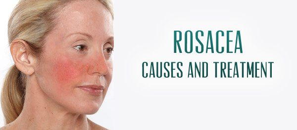 What is rosacea and how we can help!