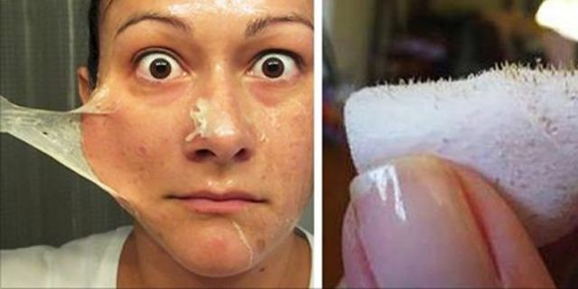 If you are the kind of person who can't stand having pimples or those dreaded blackheads on your face, this is the video for you. They usually appear on the oilier places on your face: on and around the nose, the chin area and forehead.