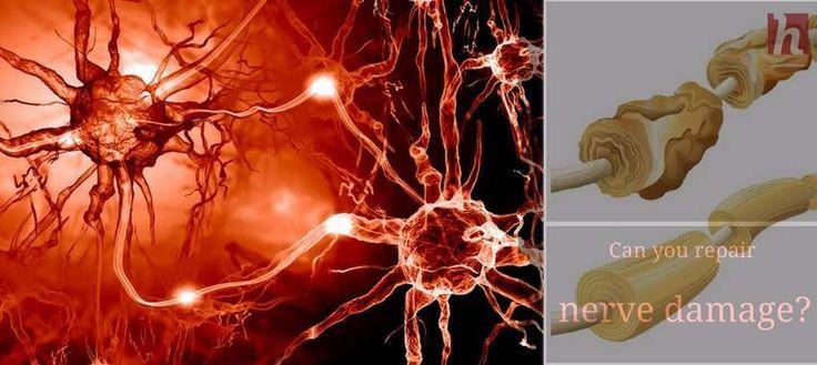 Can you repair nerve damage