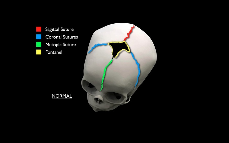 3D images of craniosynostosis | Craniosynostosis Resources ...