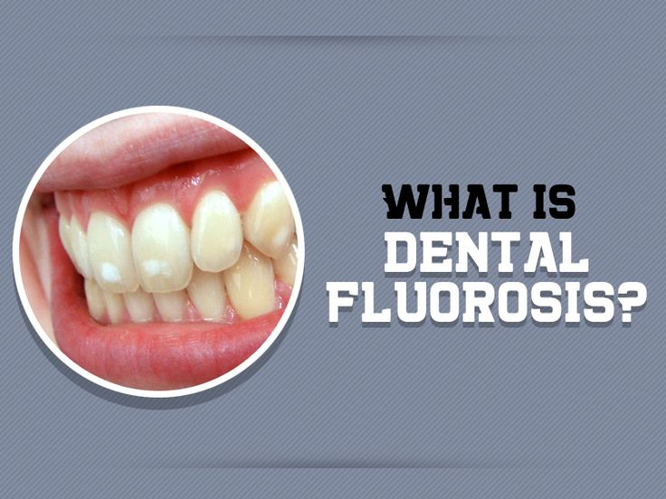 Dental fluorosis is a change in the appearance of the tooth enamel this occurs when we consume too much of fluoride content from the different source.