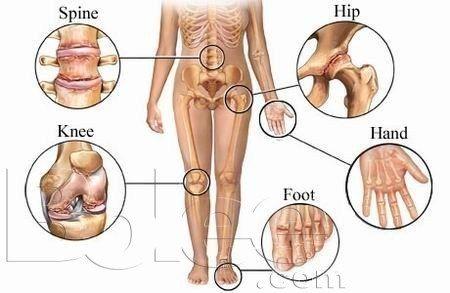 reumatismul cauze, simptome, tipuri de reumatism, reumatismul- tratmente naturiste, reumatismul- exercitiii fizice, reumatismul si fizioterapia