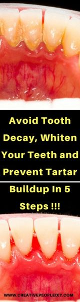 Avoid Tooth Decay, Whiten Your Teeth and Prevent Tartar Buildup In 5 Steps