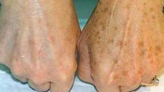 Come schiarire le macchie d'invecchiamento sulla pelle in modo naturale