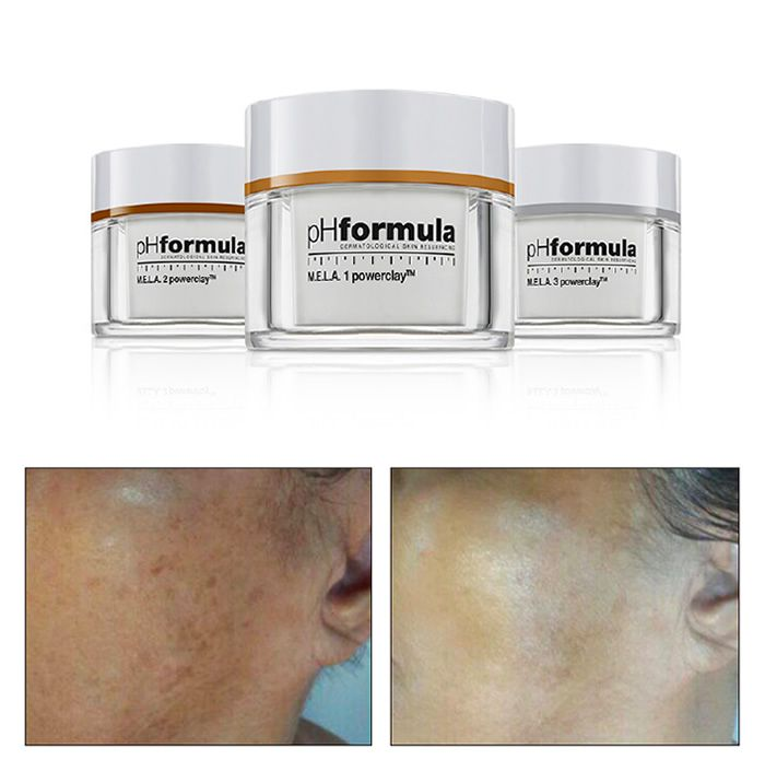 The unique pHformula powerclay formula used in the M.E.L.A. resurfacing treatments is a powerful hyperpigmentation treatment designed to reduce the accumulation of epidermally located melanin. It effectively inhibits the enzymatic activity of tyrosinase, whilst stimulating epidermal differentiation and therefore accelerates epidermal cellular turnover causing the removal of already formed melanin pigment. Due to the innovative highly effective mode of action, significant visible results are…