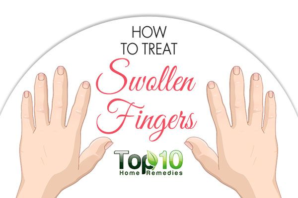 We use our fingers almost constantly and even a slight swelling or pain can cause a lot of discomfort, or worse, make it hard to use the swollen finger at all. Fingers swell for a lot of reasons and many of them are harmless. Typically, it is the result of inflammation or fluid buildup. This …