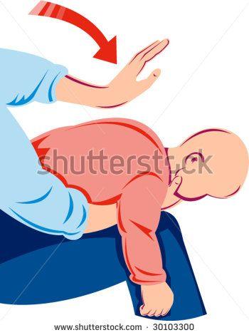 Heimlich maneuver on infant  #heimlichmaneuver #retro #illustration
