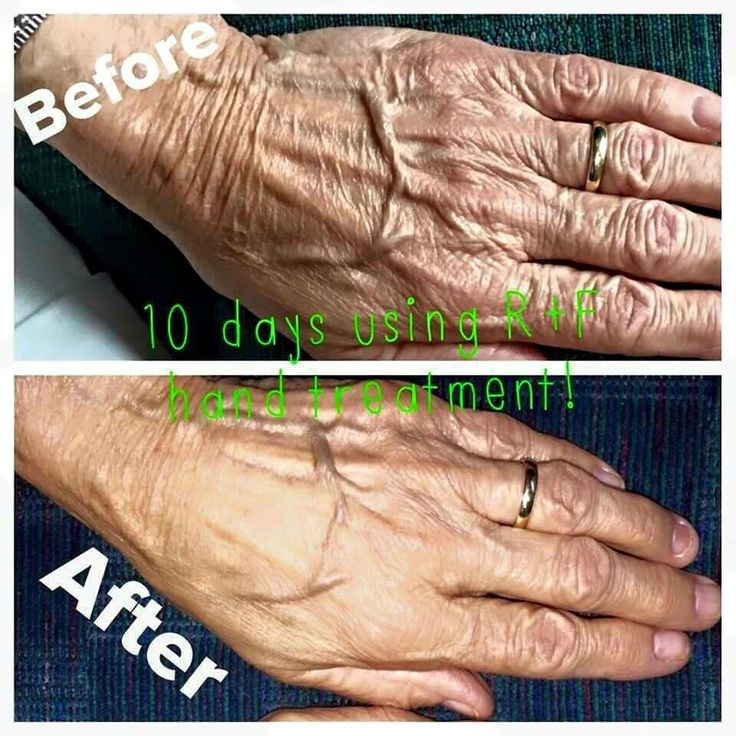 nivea hand lotion