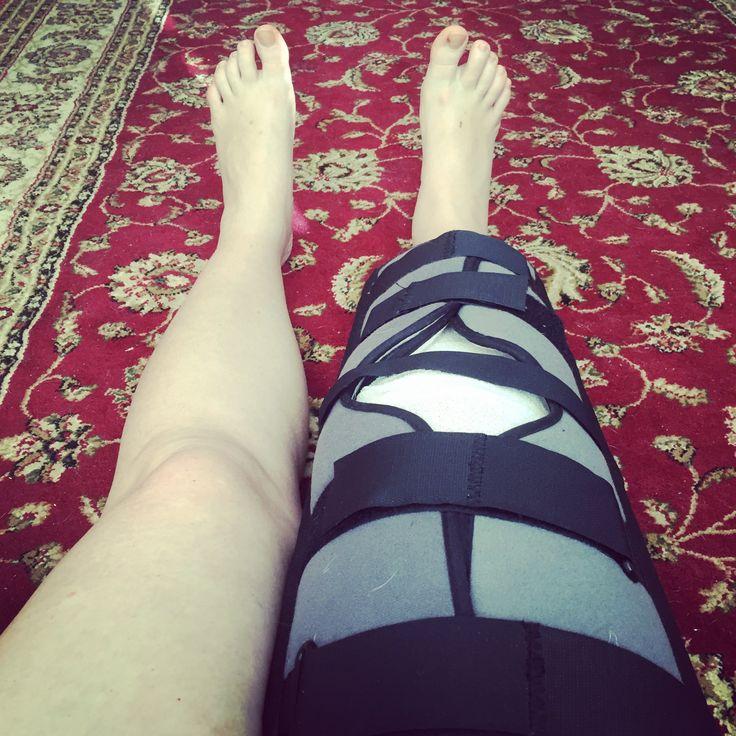 Knee brace - ACL surgery www.myhometruths.com