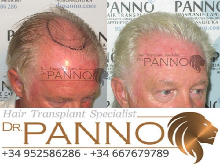 hair transplant to topup density is the natural and for life best option