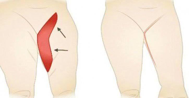 Découvrez les étapes à suivre pour vous débarrasser efficacement et durablement des graisses accumulées à l'intérieur des cuisses.