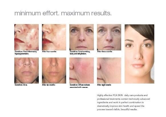 Facial treatments laser chemical peel