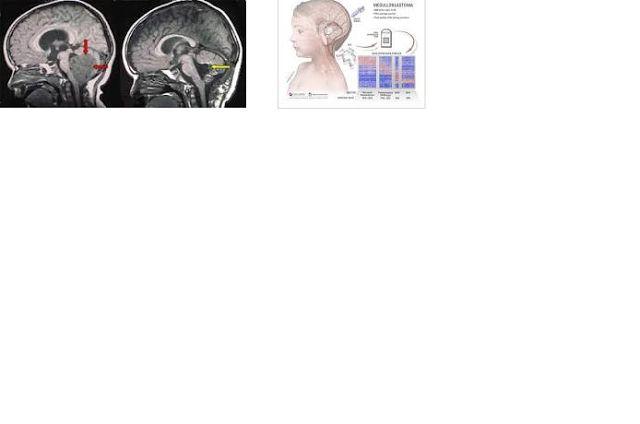 GENIO Italiano Giuseppe Cotellessa: In studio un nuovo trattamento contro il medullobl...