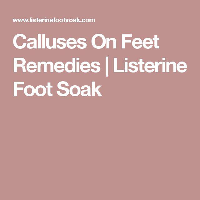 Calluses On Feet Remedies   Listerine Foot Soak