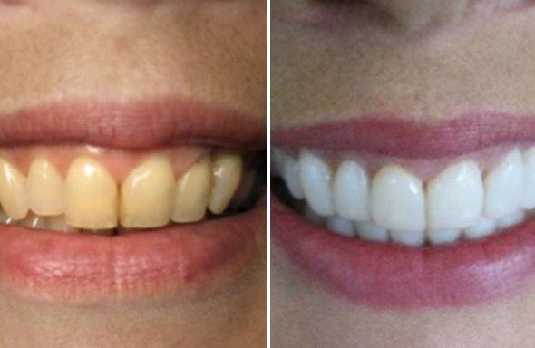 Como Branquear Os Dentes Com Bicarbonato De Sodio Clareamento De