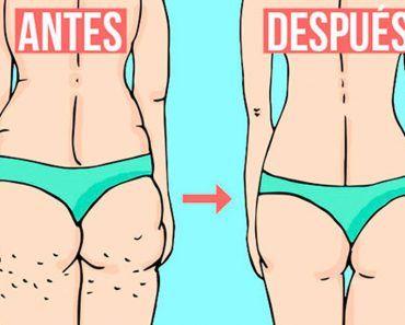La verdad sobre lo que realmente causa la celulitis y cómo deshacerse de ella para siempre