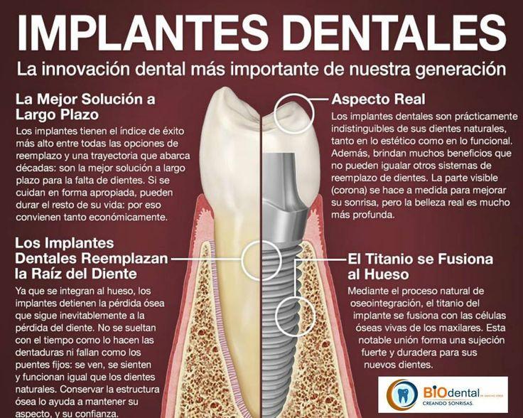 Haz tu cita y ven a crear tu mejor Sonrisa contamos con los mejores implantes dentales  Ws: 809-724-7478.  Santiago Licey Moca Tamboril y Esperanza.  #teeth #dental #odontologia #dentistry #braces #dentalschool #dentalassistant #dentalhygienist #dentalhygieneschool #teethwhitening #cosmeticdentistry #cosmeticsurgery #toothfairy #implants #dentures #rootcanal #odonto #smile #whiteteeth #cavity #orthodontist #mandibular #canine #dentalphoto #dentalpicture #dentalstudent #maxillofacial…