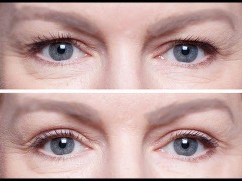 Palpebras caídas e um jeito asiático de arrumar/ How to fix hooded eyelids - YouTube