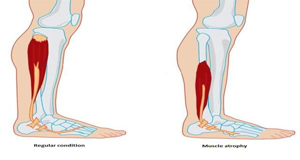 Atrophy is something that can strike anyone besides living a healthy life.