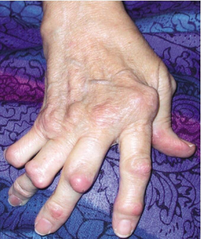Severe Rheumatoid Arthritis with ulnar deviation, rheumatoid nodules, proximal interphalangeal joint subluxations. @IMmemorandum