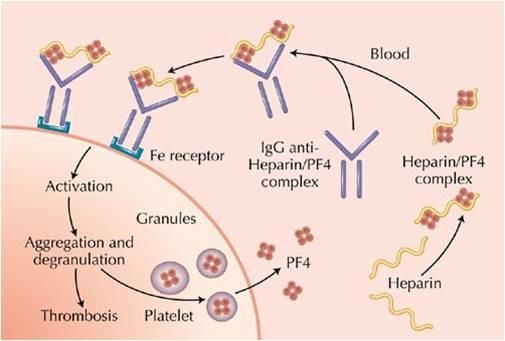 HEPARIN INDUCED THROMBOCYTOPENIA - Google Search