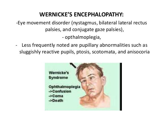 image result for wernicke u0026 39 s encephalopathy