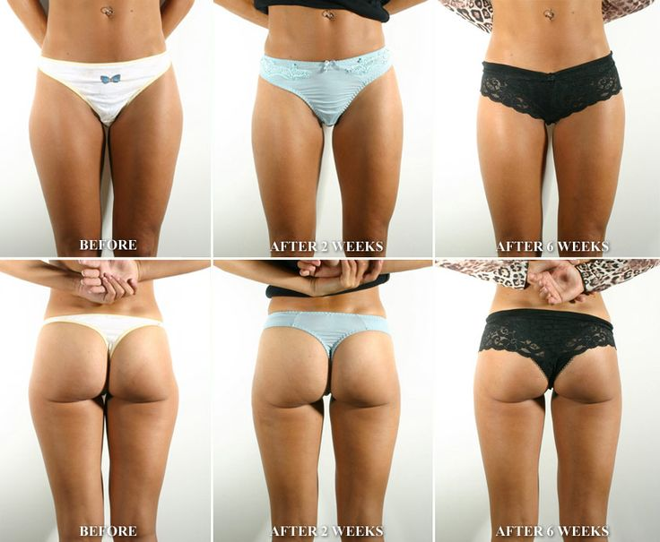 How to slim down calves quickly photo 1