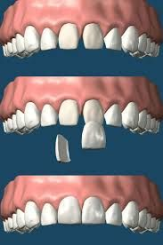 Dng Dental Clinic providing dental treatments services like Hair transplant, Laser Dentistry, Implant, Dentist, Root Canal Treatments, Smile Designing, Fixed, Orthodontics, Kids Dentistry, Gums Surgeries, Fixed Prosthodontics. More Details http://www.dngdental.com and call for +91 9636080006. Send me Email :  dhawalgoyaldngclinic@gmail.com