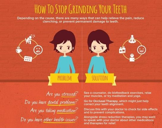 Stop Grinding Your Teeth! Consult http://carrumdownsdental.com.au  our dentist will guide you how to stop grinding your teeth. #DentalCare