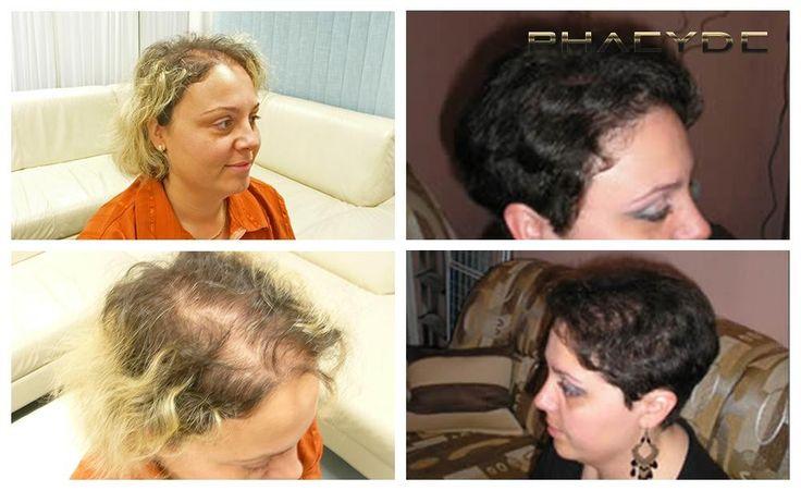 Przeszczep włosów dla kobiet - PHAEYDE Klinika  Christina miał rozproszonych łysienie wszędzie na głowę. Po 5000 + transplantacja również zdecydowała się zmienić jej fryzura, jak również. Teraz wygląda lat młodszy i oczywiście nie musiał nosić szalik znowu. Ona wygląda po prostu niesamowite po zabiegu. Wykonane przez PHAEYDE kliniki.  http://pl.phaeyde.com/przywrocenie-wlosow