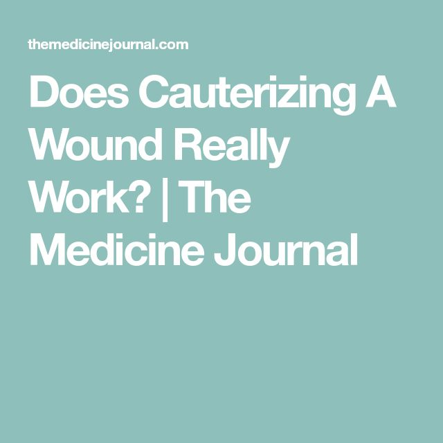 Does Cauterizing A Wound Really Work? | The Medicine Journal
