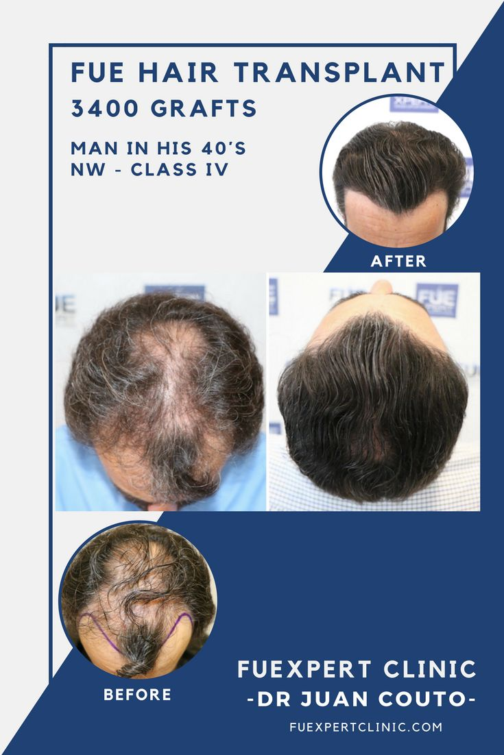 Before After 3400 FUE Grafts - FUE Hair Transplant - Dr Couto - FUExpert  Clinic -