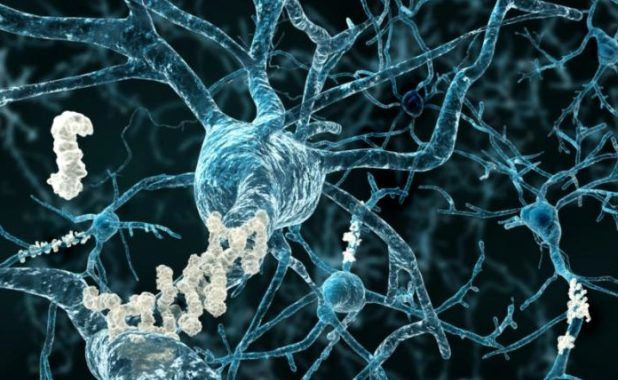 This New Breakthough Alzheimer's Treatment Fully Restores Memory Function - Promising Australian Research using an ultra sound . . .  Subscribe to my blog at: http://lifeslearning.org/ Facebook for Counselors: Facebook.com/LifesLearningForCounselors Twitter: @sapelskog