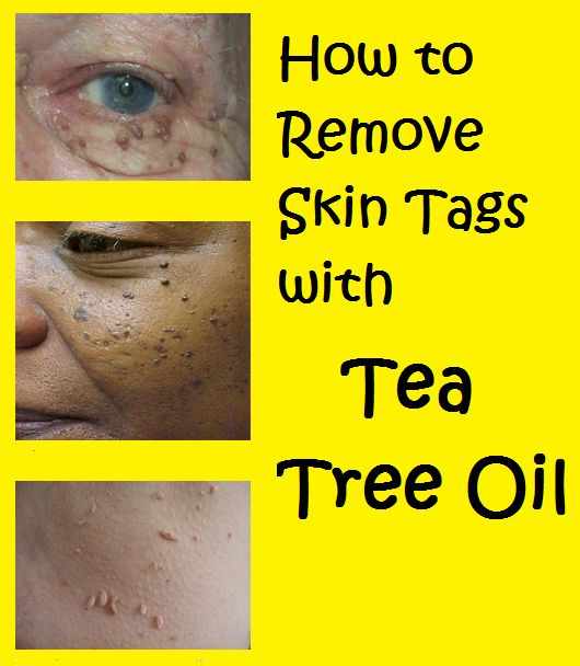 How to Remove Skin Tags with Tea Tree Oil.. Read more .. http://beautytips.givingtoyou.com/how-to-remove-skin-tags-with-tea-tree-oil