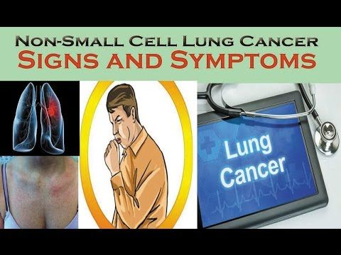 The Signs and Symptoms of Lung Cancer | Causes and Symptoms of (NSCLC) , you should not ignore - WATCH VIDEO HERE -> http://bestcancer.solutions/the-signs-and-symptoms-of-lung-cancer-causes-and-symptoms-of-nsclc-you-should-not-ignore    *** symptoms of lung cancer ***   ❤What Causes Non Small Cell Lung Cancer NSCLC ? ❤What Symptoms Non Small Cell Lung Cancer NSCLC ? A number of things will increase your risk of developing lung cancer. Smoking cigarettes or being exposed