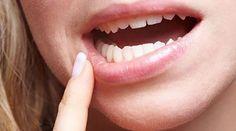 Ces petits ulcères de la bouche ne sont pas bien méchants, mais souvent très embêtants. Alors plutôt que de vous énerver, fabriquez vous-même un remède radical avec les moyens du bord. Ne courez plus