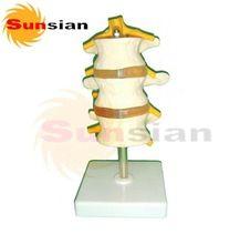 Lumbar vertebrae with Prolapsed Intervertebral Disc ,human skeleton anatomical  model //Price: $US $28.00 & FREE Shipping //