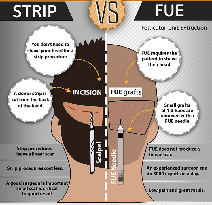 Difference FUT and FUE Hair Transplant Techniques in Mumbai