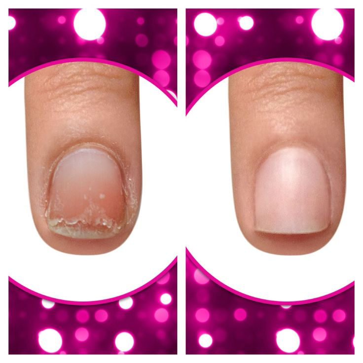 Awesome Nail Art Powder Big Essi Nail Polish Shaped Tom Ford Nail Polish Black Essie Nail Polish Young 4th Of July Nail Polish GreenNail Art Designs To Do At Home Do You Suffer From #delamination #weak #peeling #nails? We Now ..