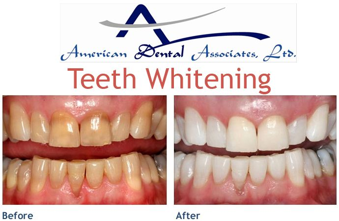 Consult Atooth.com cosmetic dentist to know which teeth whitening treatment is best for you. Know all about teeth whitening treatment and its benefit and the cost of teeth whitening.