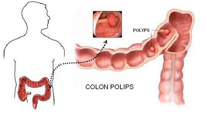 Colon polyps: Symptoms and treatment!
