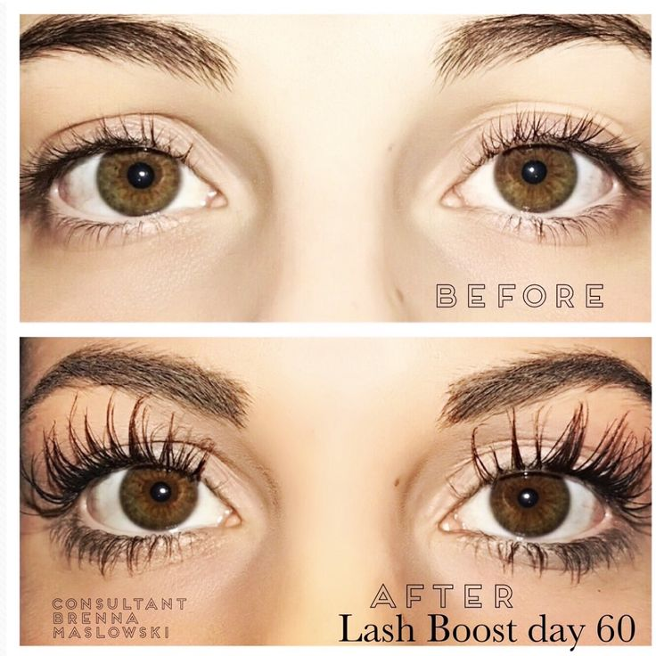 rodan   fields lash boost before and after results