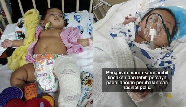 Bayi patah tulang paha terkehel kaki kiri dan lebam di beberapa bahagian badan   JERTEH TERENGGANU - Bayi perempuan berusia 6 bulan patah tulang paha terkehel kaki kiri dan lebam di beberapa bahagian badan semasa berada di bawah jagaan pengasuhnya.  Dalam kejadian 13 April lalu di rumah pengasuh Kampung Seberang Marang mangsa. Sharifah Sufi Humaira Syed Shahrul 6 bulan dibawa ke Hospital Nur Zahirah oleh ibu bapanya untuk mendapatkan rawatan berikutan kecederaan yang dialaminya itu agak…