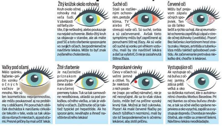 Vaše oči prezradia, či ste chorí | Nový Čas